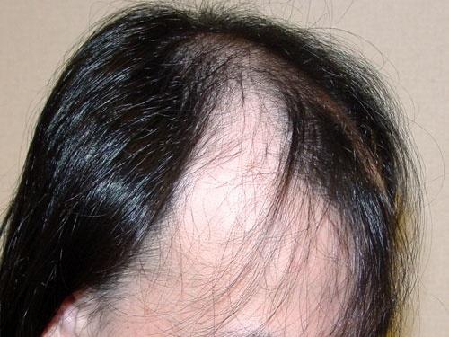 薄い 部 前 頭 後頭部を強打した後は鼻水の色にも注意が必要なワケ